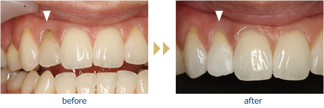 Before and After: Actual Patient (Internal Bleaching Auckland)